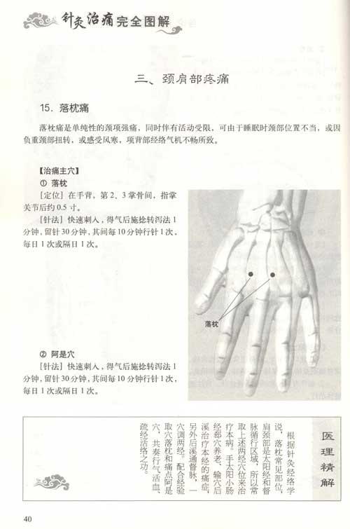 针灸治痛完全图解.全图解系列丛书--中医养生-文轩网